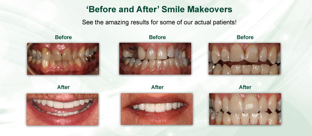 Smile Makeovers - Cosmetic Dental Care Libby MT