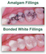 White Dental Fillings Dentist Libby MT